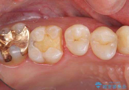 保険の銀歯をゴールドへ PGA インレーの治療中