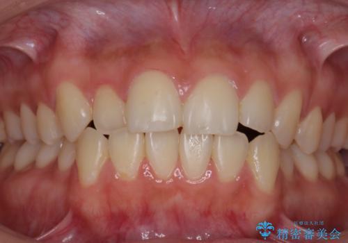 イベント前にホワイトニングで白い歯にの症例 治療前