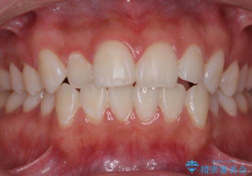 イベント前にホワイトニングで白い歯にの症例 治療後
