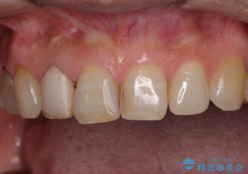 長年気にしていた変色の前歯をセラミックにの治療前