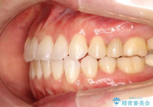 歯を抜かずに八重歯をきれいに! インビザラインによる全顎矯正治療の治療後