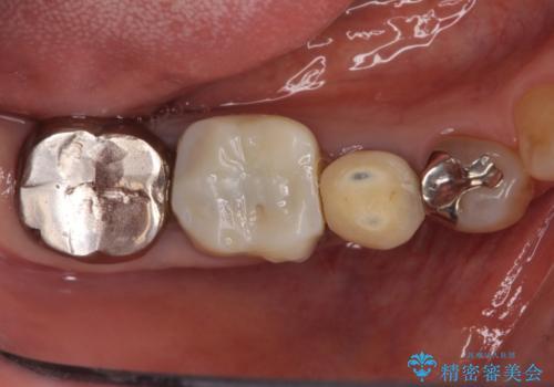 治療途中の奥歯をきれいに仕上げたいの治療前