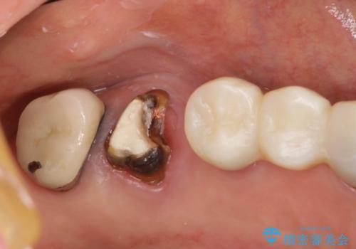上の奥歯が保存不可能に→サイナスソケットリフトで薄い骨にも対応の症例 治療前