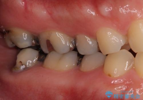 歯医者嫌いで歯がボロボロに 外科処置を用いた抜かない補綴治療の治療前