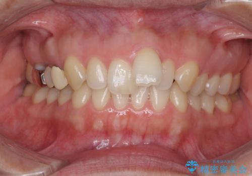 上の前歯の出っ歯を抜歯矯正で改善の症例 治療前