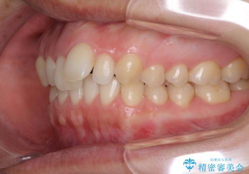 上の前歯の出っ歯を抜歯矯正で改善の治療前