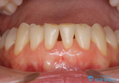 前歯の歯肉退縮 歯肉移植による根面被覆の症例 治療後