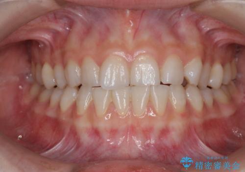オフィスホワイトニングでより白い歯にの症例 治療前