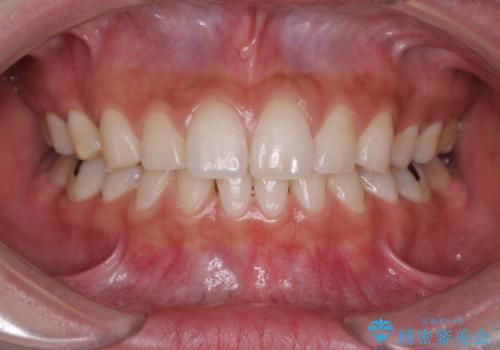 抜歯矯正の後戻りをインビザラインできれいにの症例 治療前