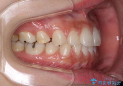 抜歯矯正の後戻りをインビザラインできれいにの治療前