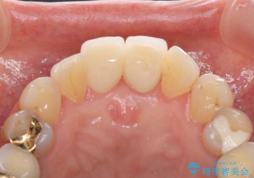 歯茎の腫れた前歯を綺麗にしたい 部分矯正を用いたセラミック治療の治療後