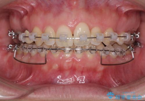 上の前歯の出っ歯を抜歯矯正で改善の治療中