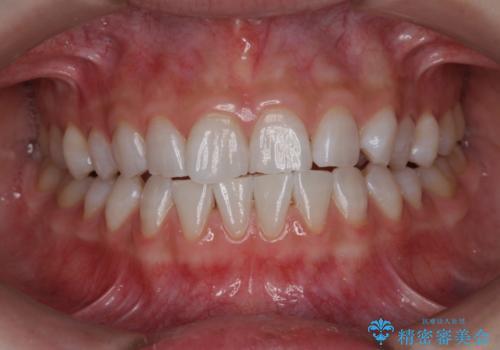 オフィスホワイトニングでより白い歯にの症例 治療後