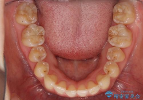 インビザラインで気づかれずに歯の矯正をの治療後