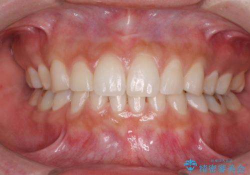 抜歯矯正の後戻りをインビザラインできれいにの症例 治療後