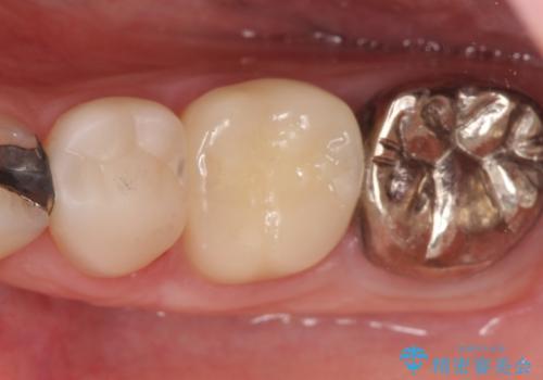 オールセラミッククラウン 奥歯の治療の治療後