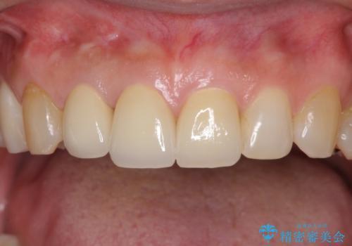 長年気にしていた変色の前歯をセラミックにの治療後