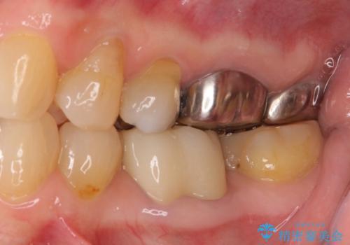 治療途中の奥歯をきれいに仕上げたいの治療後
