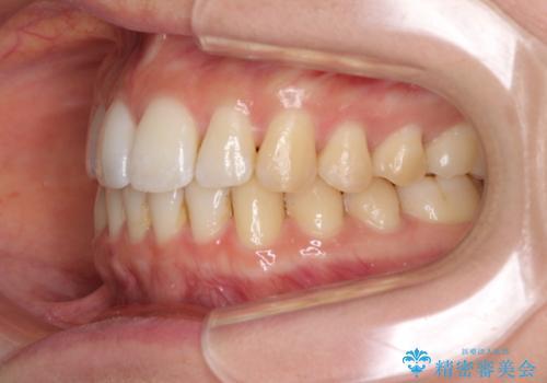 前歯のでこぼこを改善 インビザラインによる矯正治療の治療後