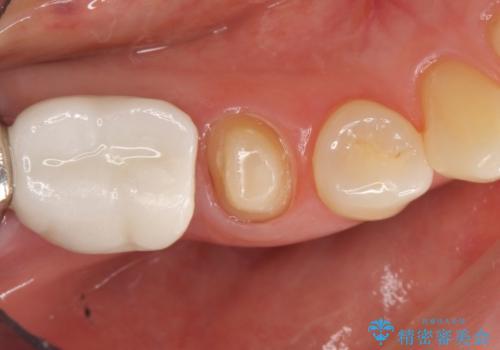 オールセラミッククラウン 歯茎との隙間が気になる被せ物の修復の治療中