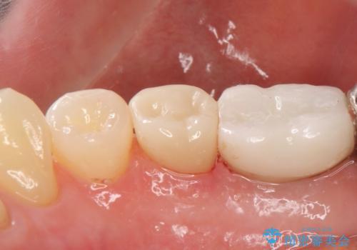 オールセラミッククラウン 歯茎との隙間が気になる被せ物の修復の治療後