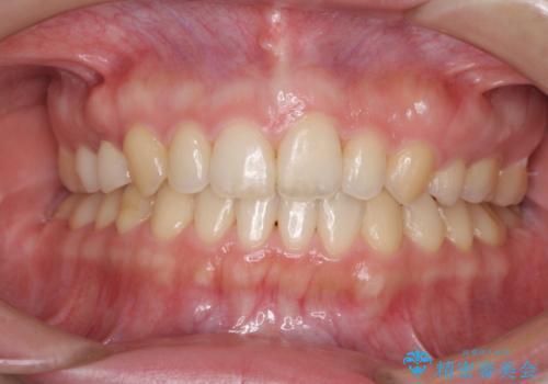 上の前歯の出っ歯を抜歯矯正で改善の症例 治療後