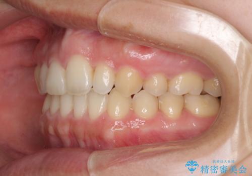上の前歯の出っ歯を抜歯矯正で改善の治療後
