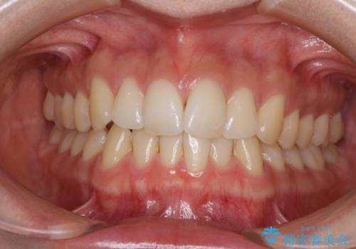 前歯のでこぼこを改善 インビザラインによる矯正治療の治療前