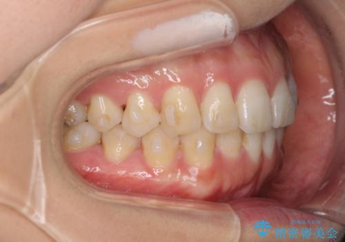 インビザラインで気づかれずに歯の矯正をの治療中