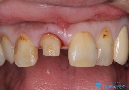 前歯がとれた 残った小さい歯を引っ張り出して保存するの治療前