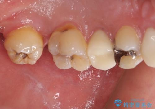 左上奥歯の虫歯 白い詰め物セラミックインレーの治療前