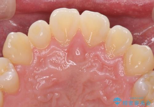 矮小歯のオールセラミッククラウンによる審美的改善の治療前