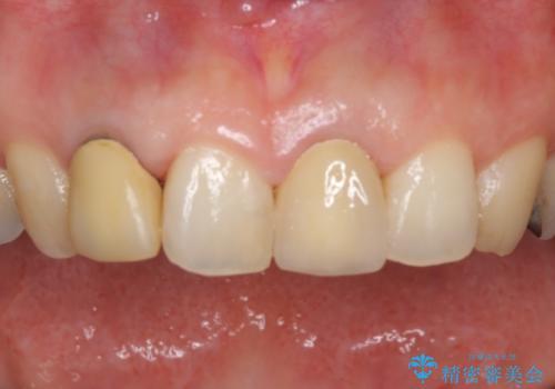 前歯の裏が腫れている 清潔な当院に転院希望の治療後