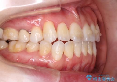 歯を抜かずに八重歯をきれいに! インビザラインによる全顎矯正治療の治療中