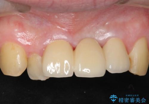[歯牙破折]  歯槽堤保存術を応用した上顎前歯ブリッジの治療後