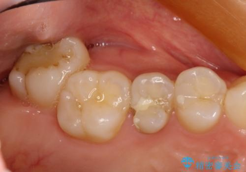 神経に達する深い虫歯 根管治療とかぶせもの治療の治療前