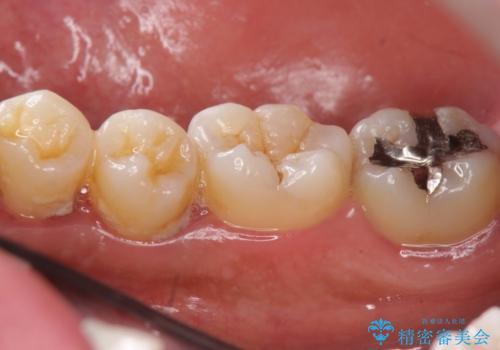 たくさん付着した歯石とプラークをスケーリングで除去の治療前
