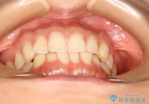 インビザラインで気づかれずに歯の矯正をの治療前
