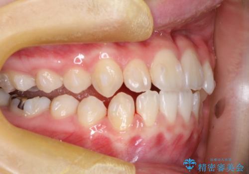 インビザラインによる受け口の治療 機能性反対咬合の経過の治療中