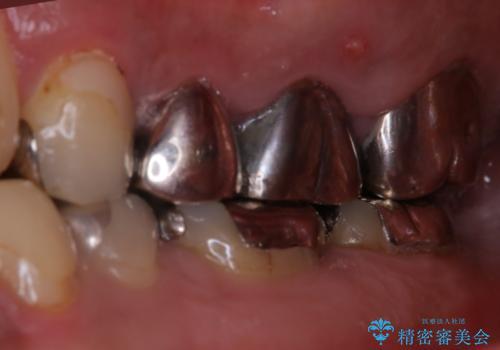 根管治療からやり直し 奥歯の被せ物までの治療前