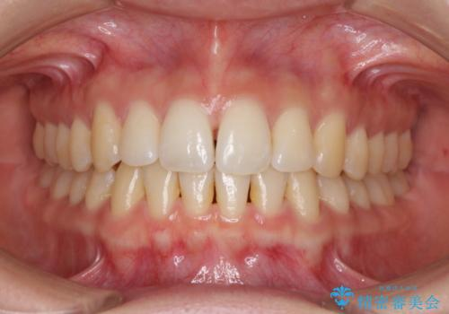 前歯のでこぼこを改善 インビザラインによる矯正治療の治療中