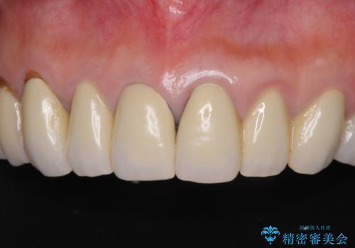 金属の色が見える前歯をオールセラミックにの治療前