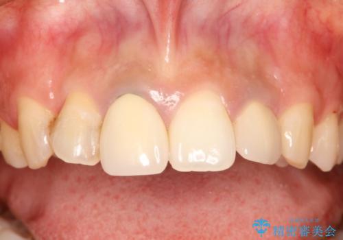 前歯のセラミック修復 根管治療・歯周外科も行うの治療前