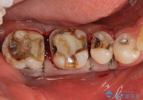 歯周外科を併用したセラミックインレー修復の治療中