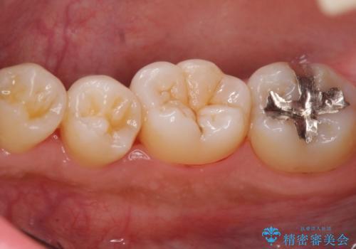 たくさん付着した歯石とプラークをスケーリングで除去の治療後