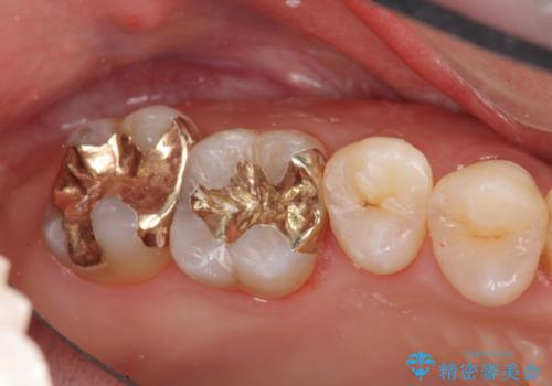 保険の銀歯をゴールドへ PGA インレーの治療後