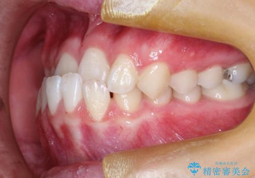 インビザラインによる受け口の治療 機能性反対咬合の経過の症例 治療前