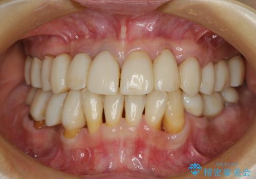 どんなに歯を磨いても治らない 重度歯周病患者の治療の治療中