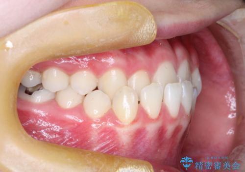 インビザラインによる受け口の治療 機能性反対咬合の経過の治療前