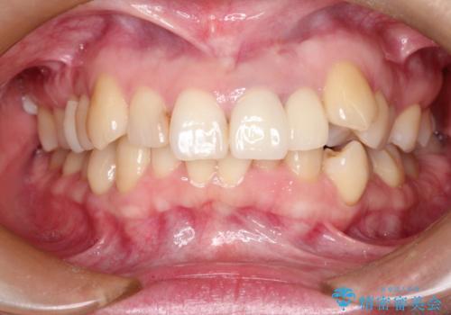 上の前歯に違和感がある 根管治療からの再治療の治療後